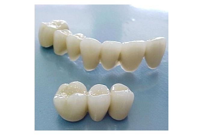 Bọc răng sứ Vita phục hình răng đẹp giá Việt Nam, chất lượng chuẩn